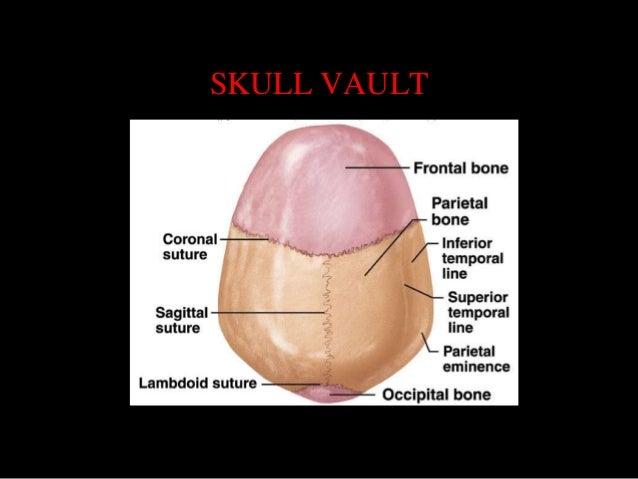 Sectional anatomy of brain