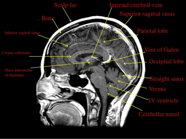 MRI SECTIONAL ANATOMY OF BRAIN