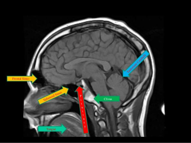 Anatomy of the encephalon MRI in axial slices  IMAIOS