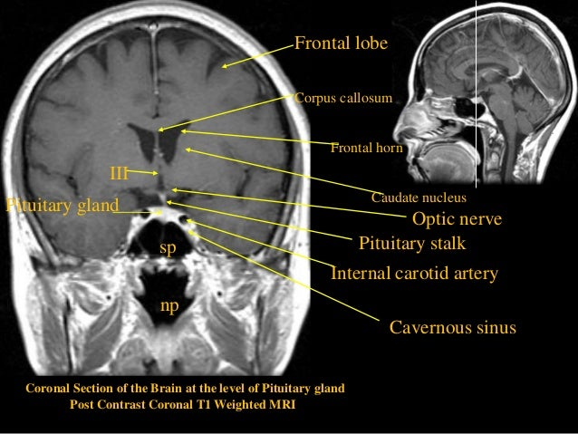 Mri sectional anatomy of brain into brain stem ccuart Images