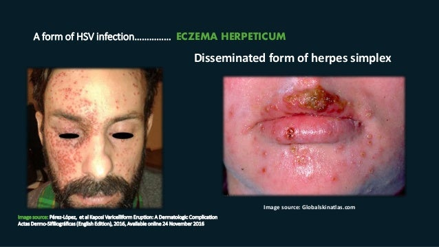 A form of HSV infection…………… ECZEMA HERPETICUM Image source: Pérez-López, et al Kaposi Varicelliform Eruption: A Dermatolo...