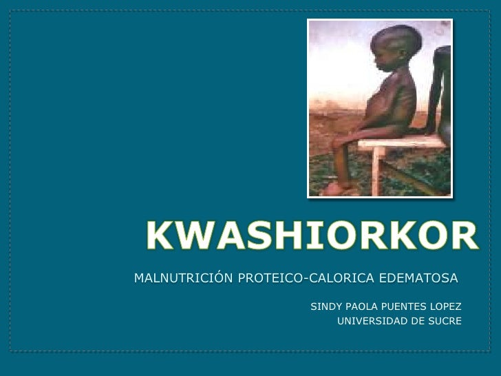 KWASHIORKOR<br />Malnutrición PROTEICO-CALORICA EDEMATOSA <br />SINDY PAOLA PUENTES LOPEZ <br />UNIVERSIDAD DE SUCRE <br />