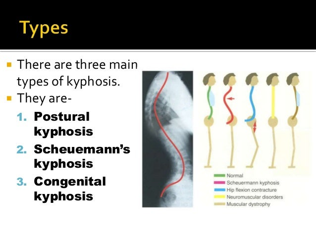  There are three main types of kyphosis.  They are- 1. Postural kyphosis 2. Scheuemann's kyphosis 3. Congenital kyphosis