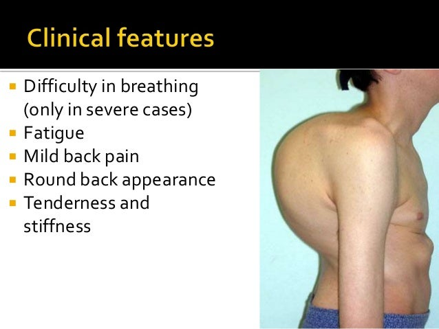  Difficulty in breathing (only in severe cases)  Fatigue  Mild back pain  Round back appearance  Tenderness and stiff...