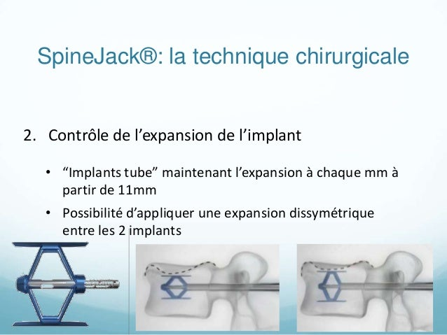 kypho spine jack copie. Black Bedroom Furniture Sets. Home Design Ideas