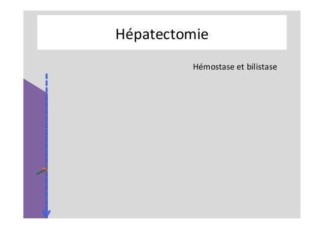 Kyste hydatique du foie