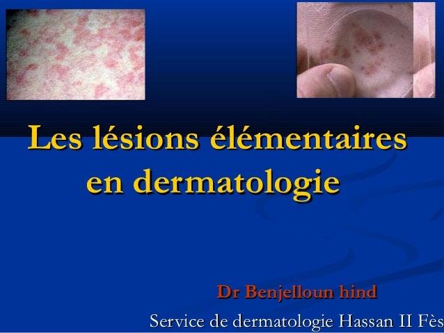 Les lésions élémentaires   en dermatologie                Dr Benjelloun hind       Service de dermatologie Hassan II Fès