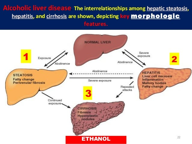 L24 alcoholic liver disease ethanol 21 22 alcoholic liver disease ccuart Image collections