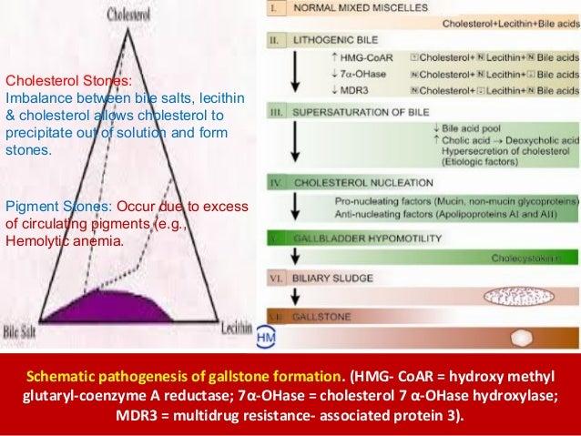 L30 gallstones student schematic pathogenesis ccuart Images