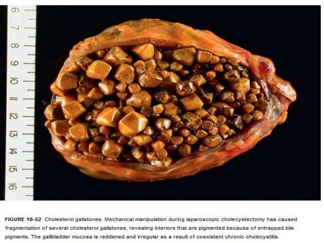 l30 gallstones student, Human Body
