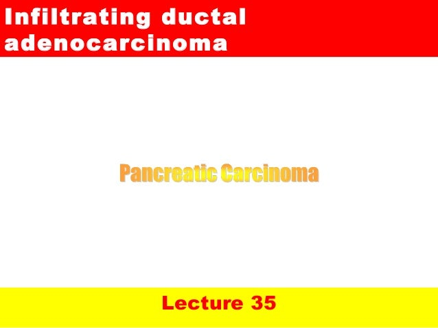 Lecture 35Infiltrating ductaladenocarcinoma