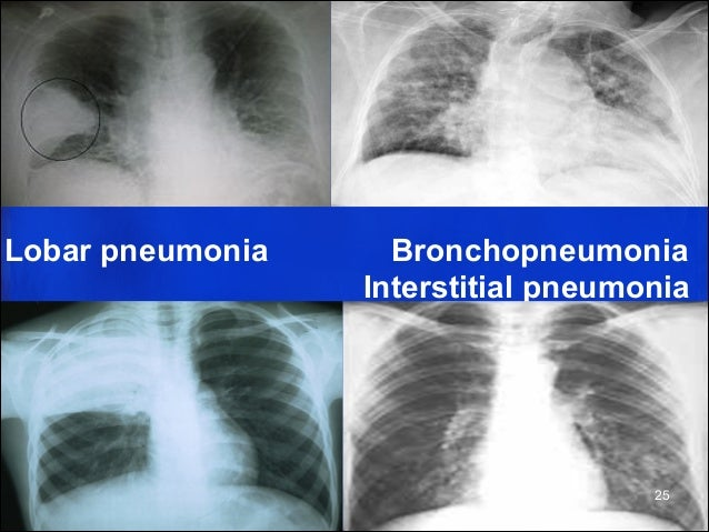 L9 10.lung consolidation CANCER AND PNEUMONIA
