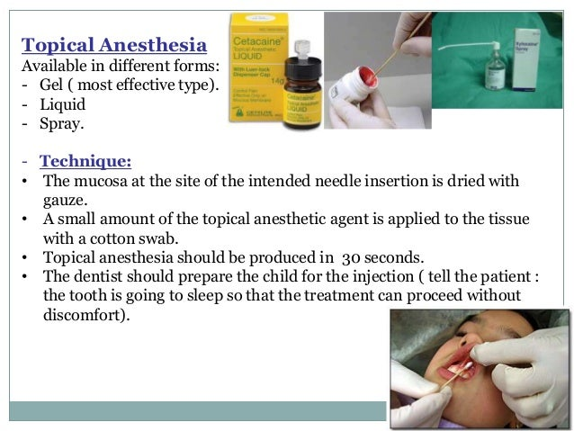 Local Anesthesia for pediatric dentistry