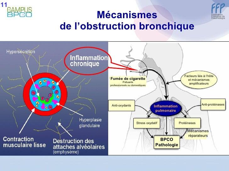 Mécanismes de l'obstruction bronchique 11