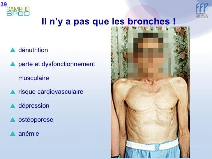 <ul><li>dénutrition </li></ul><ul><li>perte et dysfonctionnement </li></ul><ul><li>musculaire </li></ul><ul><li>risque car...