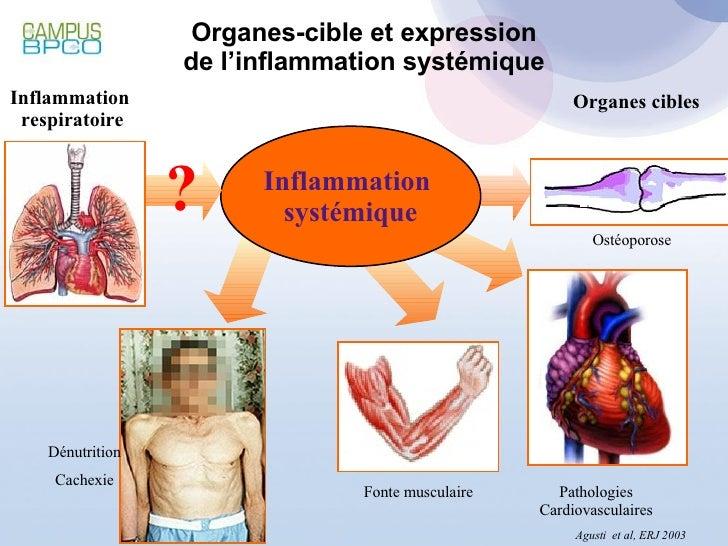 Organes-cible et expression de l'inflammation systémique Inflammation  respiratoire Organes cibles Inflammation  systémiqu...