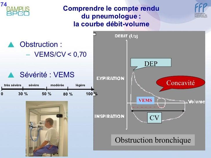 Comprendre le compte rendu du pneumologue : la courbe débit-volume <ul><li>Obstruction :  </li></ul><ul><ul><li>VEMS/CV < ...