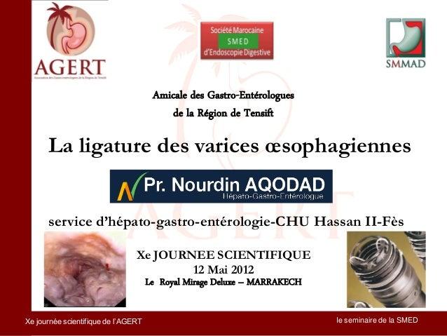 Amicale des Gastro-Entérologues                                         de la Région de Tensift      La ligature des varic...
