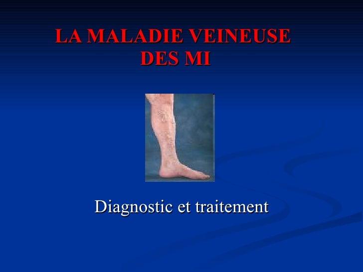 LA MALADIE VEINEUSE  DES MI Diagnostic et traitement
