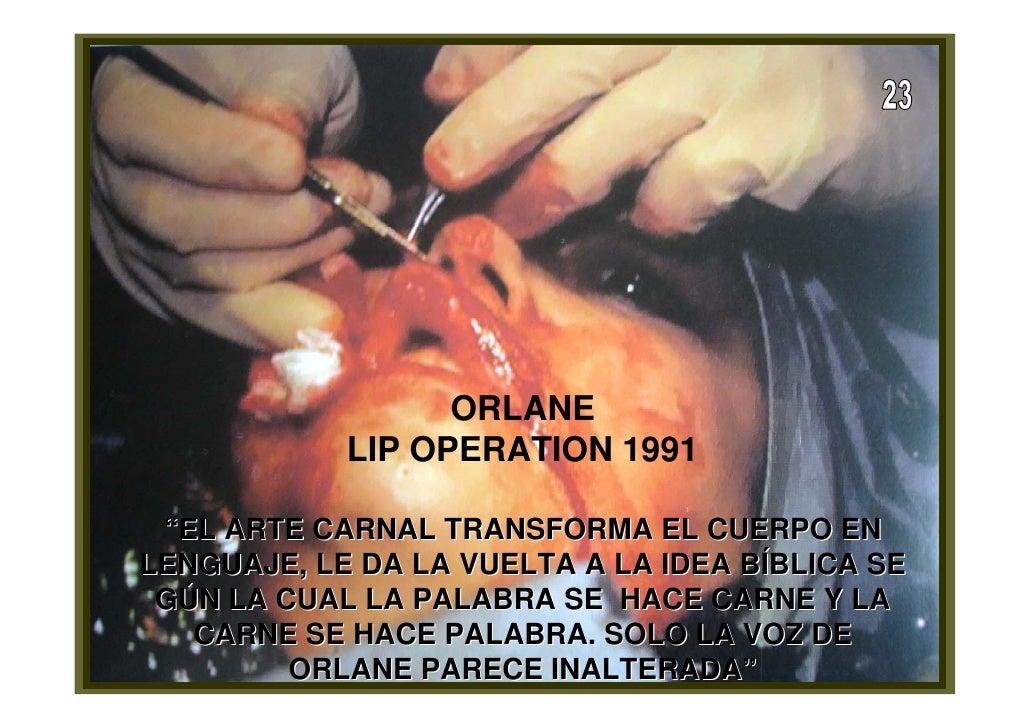 La MutilacióN Del Ser Y El Tratamiento Del Cuerpo En La Vida ..