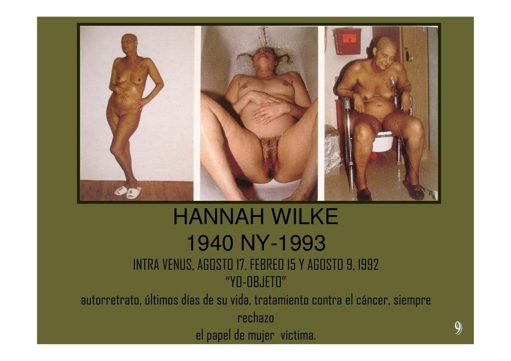 HANNAH WILKE                     1940 NY-1993            INTRA VENUS, AGOSTO 17, FEBREO 15 Y AGOSTO 9, 1992               ...