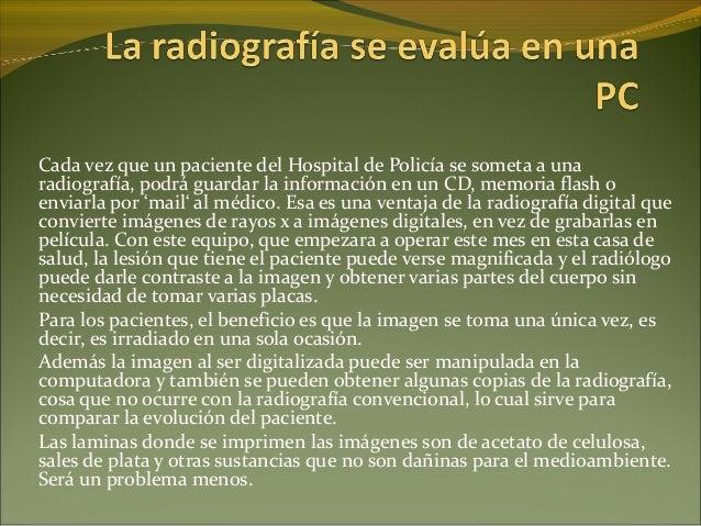 Cada vez que un paciente del Hospital de Policía se someta a una radiografía, podrá guardar la información en un CD, memor...