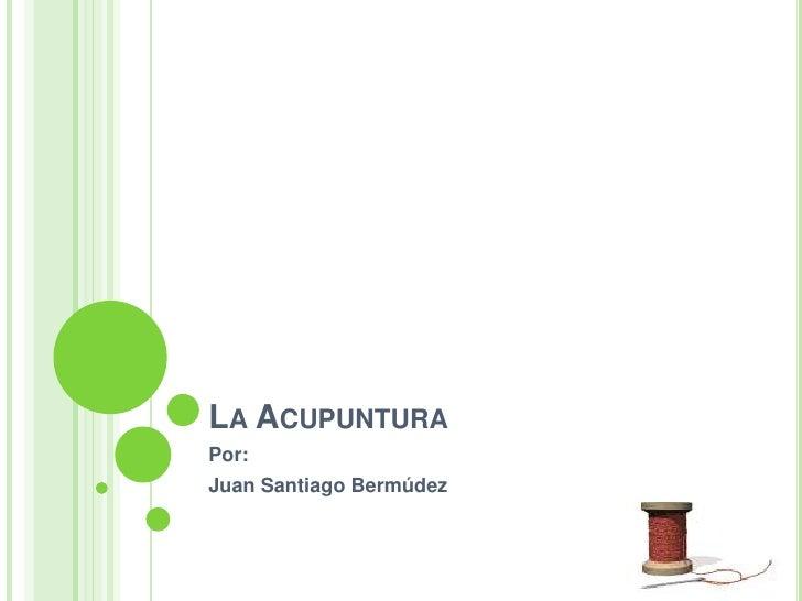 LA ACUPUNTURA Por: Juan Santiago Bermúdez
