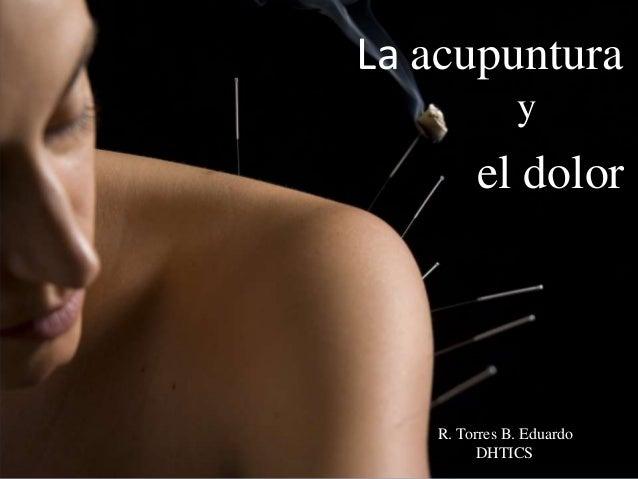 el dolor R. Torres B. Eduardo DHTICS y La acupuntura