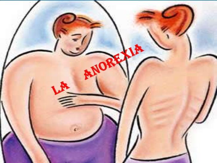 INTRODUCCIÒN Este tema es difícil de asimilar la palabra anorexia era utilizada por los médicos como sinónimo de falta de ...