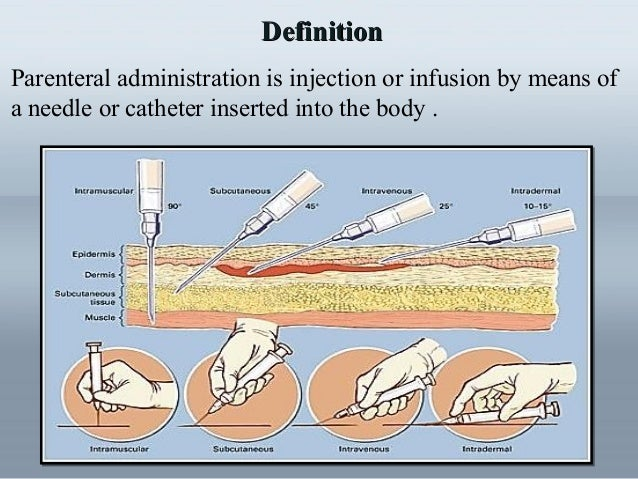 Administration of medication by injection