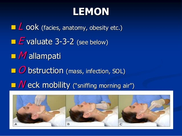 Airway management in the Emergency Department for Trainees