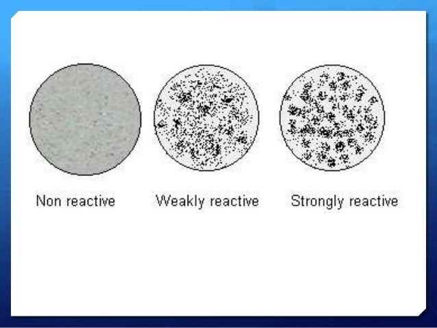 idiopathic thrombocytopenic purpura corticosteroids