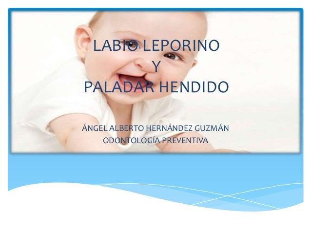 LABIO LEPORINO Y PALADAR HENDIDO ÁNGEL ALBERTO HERNÁNDEZ GUZMÁN ODONTOLOGÍA PREVENTIVA