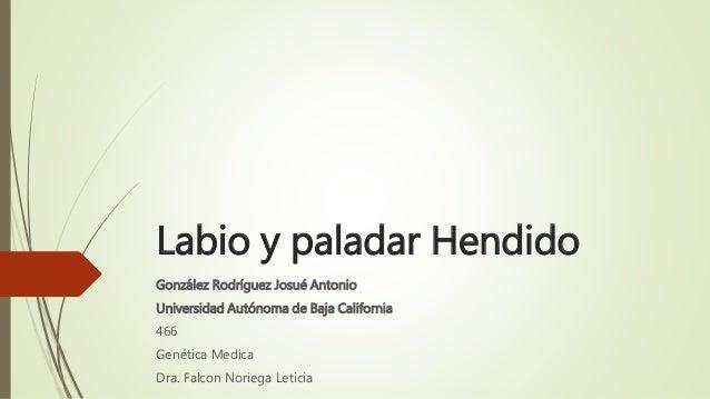 Labio y paladar Hendido González Rodríguez Josué Antonio Universidad Autónoma de Baja California 466 Genética Medica Dra. ...
