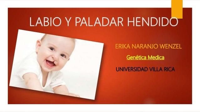 LABIO Y PALADAR HENDIDO ERIKA NARANJO WENZEL Genética Medica UNIVERSIDAD VILLA RICA