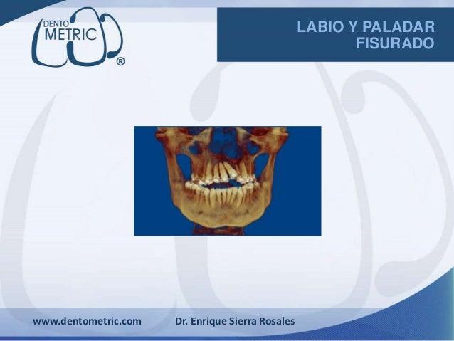 www.dentometric.com Dr. Enrique Sierra Rosales LABIO Y PALADAR FISURADO
