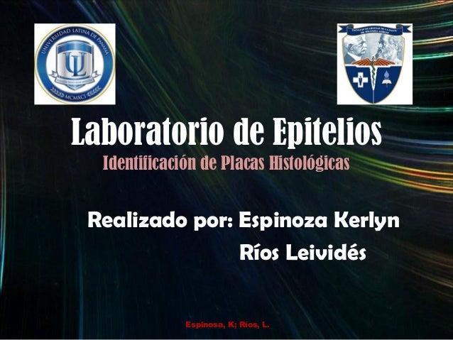 Laboratorio de Epitelios Identificación de Placas Histológicas Realizado por: Espinoza Kerlyn Ríos Leividés Espinosa, K; R...
