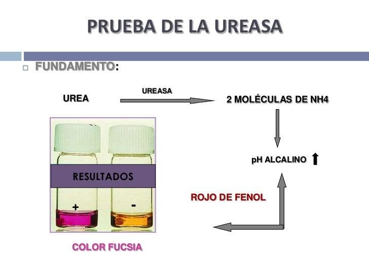 PRUEBA DE LA UREASA<br />FUNDAMENTO:<br />UREASA<br />UREA<br />2 MOLÉCULAS DE NH4<br />pH ALCALINO<br />RESULTADOS<br />R...