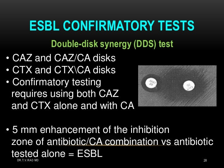 Detection of ESBLs: step 2<br />Seek ceph/clav synergy in ceph R isolates <br />Double disc<br />Combination disc<br />Ete...