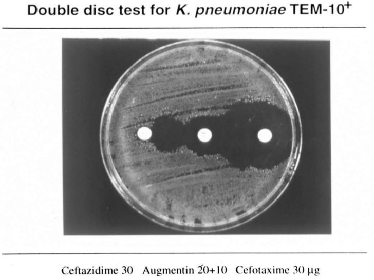 Synergy test with ceph/clavulanic acid</li></ul>Combination discs are most cost effective synergy tests; Etest a good alte...