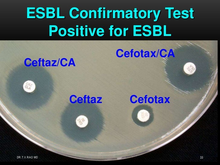 Confirmatory testing </li></ul>  requires using both CAZ <br />  and CTX alone and with CA<br /><ul><li> 5 mm enhancement...