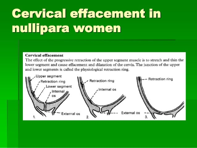 Cervical Effacement In Nullipara Women ...