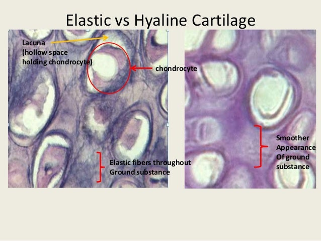 What Are The Similarities And Differences Between Hyaline Cartilage And Elastic Cartilage Socratic