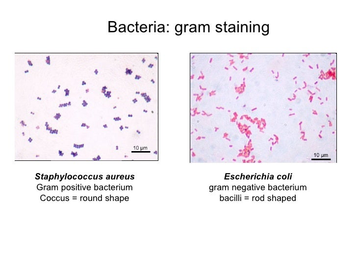 Different Size Shape and Arrangement of Bacterial Cells