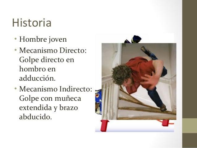 Historia • Hombre joven • Mecanismo Directo: Golpe directo en hombro en adducción. • Mecanismo Indirecto: Golpe con muñeca...