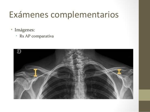 Exámenes complementarios • Imágenes: • Rx AP comparativa