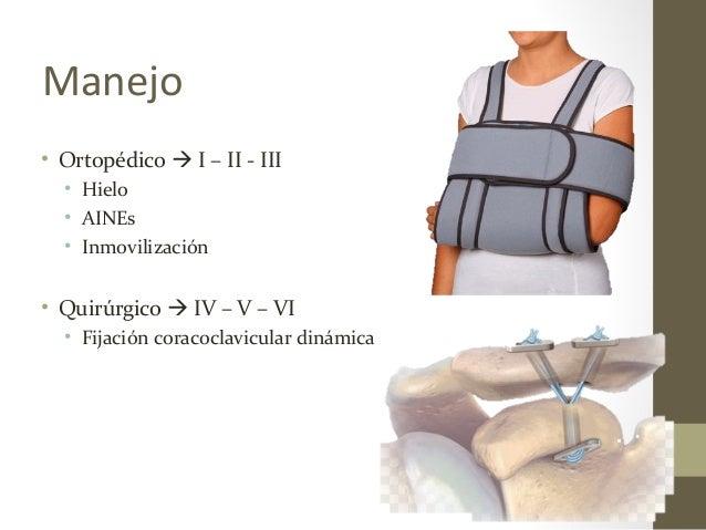 Manejo • Ortopédico  I – II - III • Hielo • AINEs • Inmovilización • Quirúrgico  IV – V – VI • Fijación coracoclavicular...