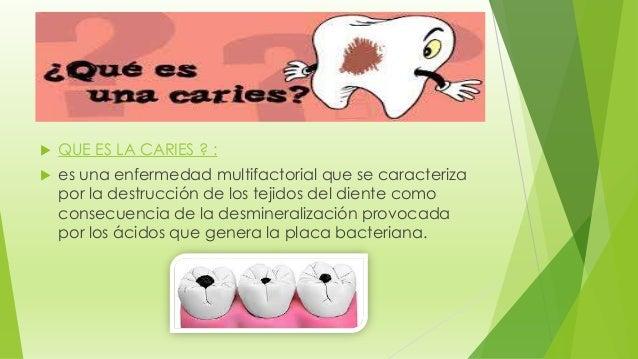  QUE ES LA CARIES ? :  es una enfermedad multifactorial que se caracteriza por la destrucción de los tejidos del diente ...