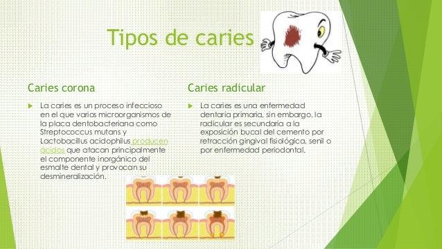 Tipos de caries Caries corona  La caries es un proceso infeccioso en el que varios microorganismos de la placa dentobacte...
