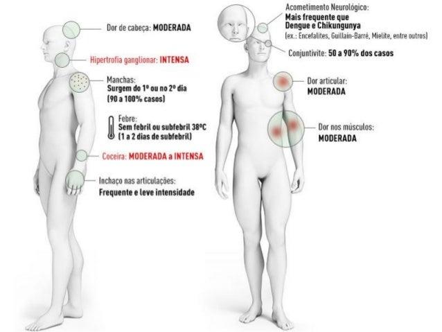 TRATAMENTO • Não há tratamento específico para ambos.  ZIKA: 1) Controle da febre e manejo da dor  acetoaminofeno (parac...
